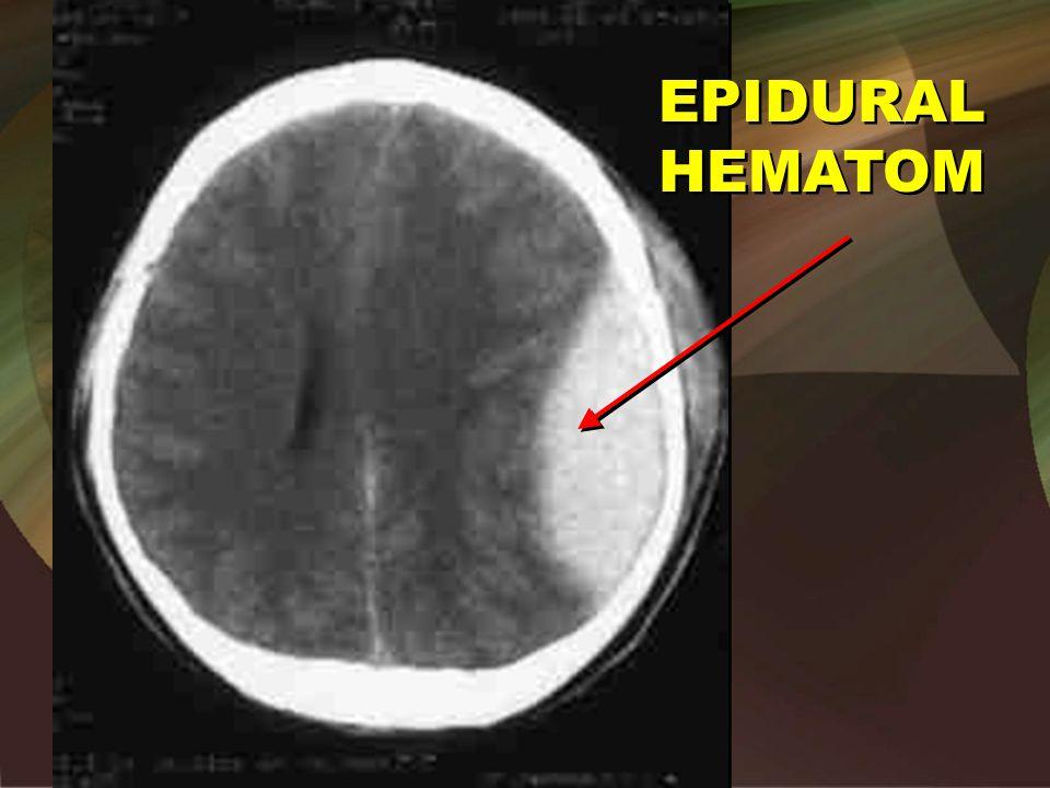 EPIDURAL HEMATOM Epidural
