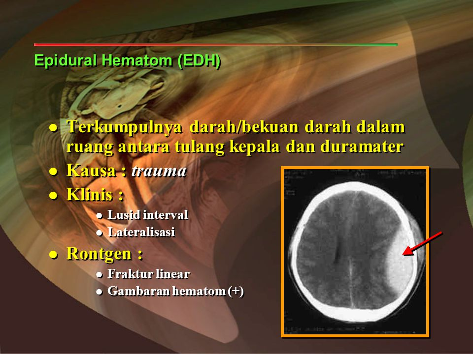 Epidural Hematom (EDH)