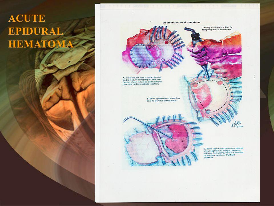 ACUTE EPIDURAL HEMATOMA