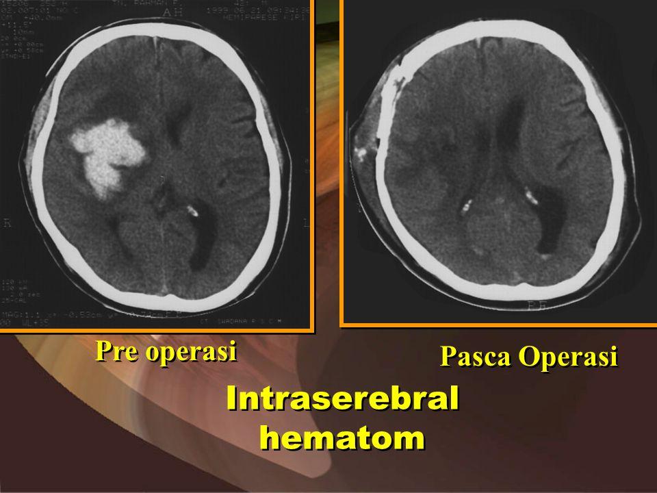 Intraserebral hematom