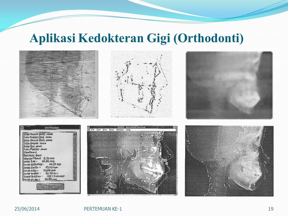 Aplikasi Kedokteran Gigi (Orthodonti)