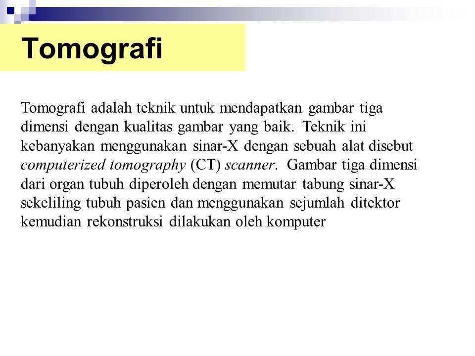 Tomografi