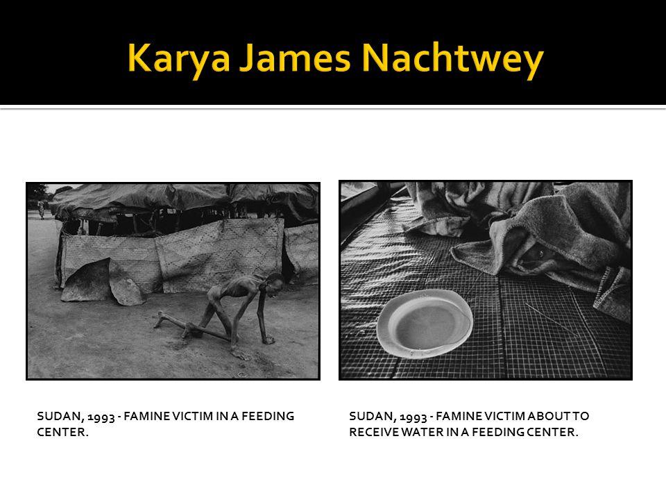 Karya James Nachtwey Sudan, 1993 - Famine victim in a feeding center.