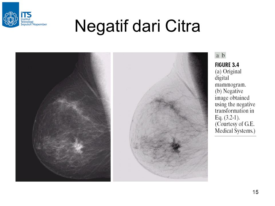 Negatif dari Citra
