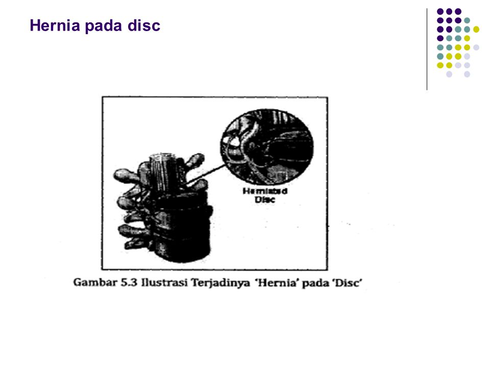 Hernia pada disc