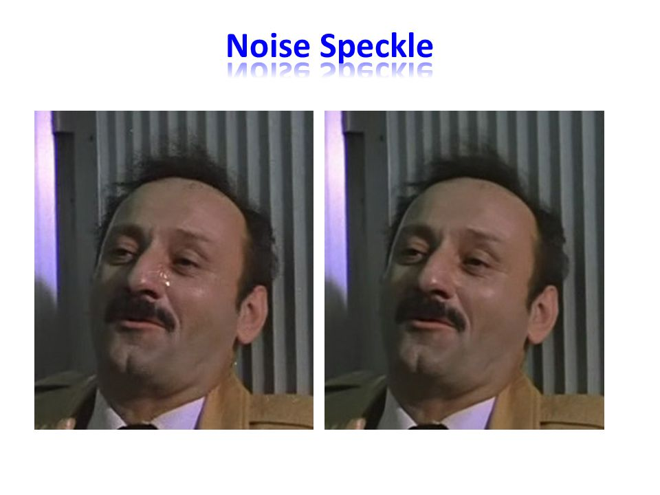 Noise Speckle