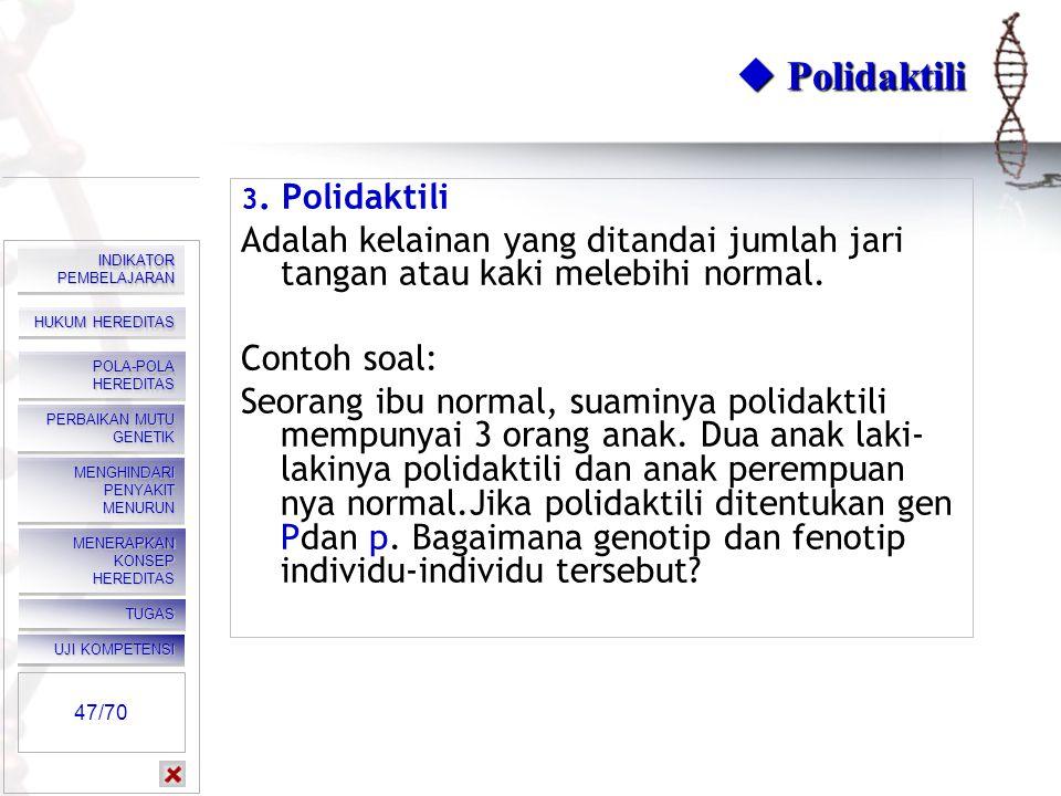  Polidaktili 3. Polidaktili. Adalah kelainan yang ditandai jumlah jari tangan atau kaki melebihi normal.