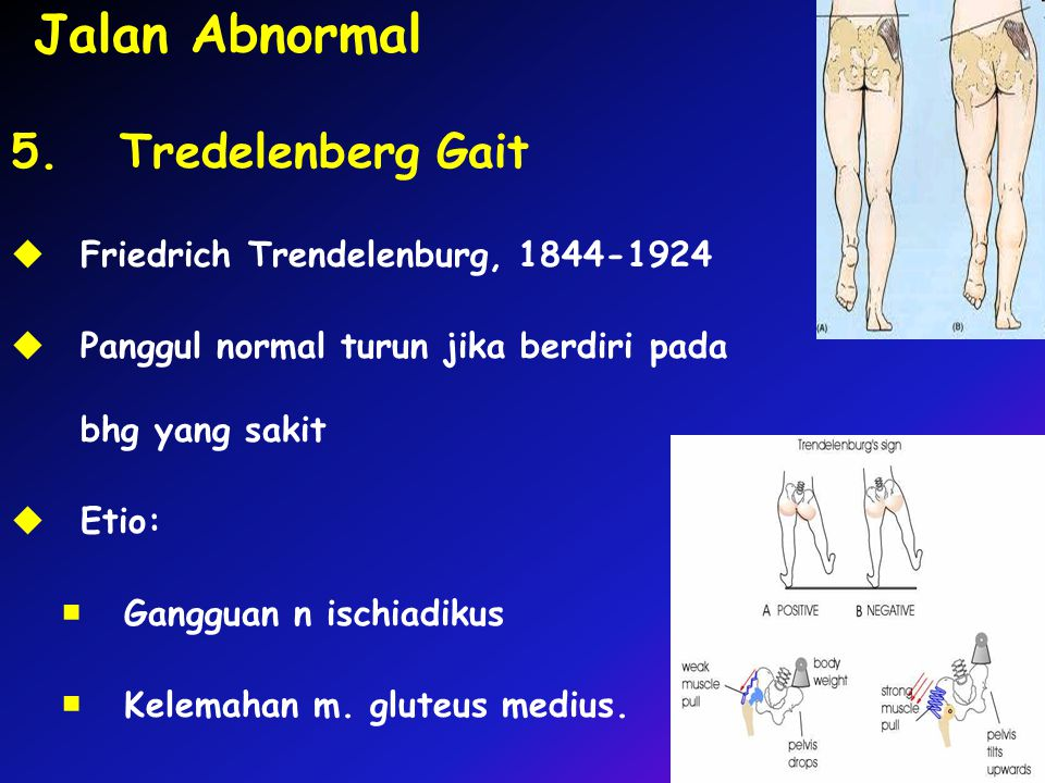 Jalan Abnormal 5. Tredelenberg Gait Friedrich Trendelenburg,