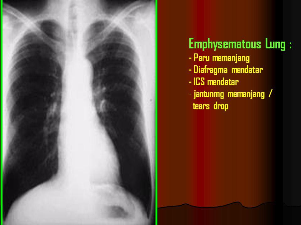 Emphysematous Lung : - Paru memanjang - Diafragma mendatar
