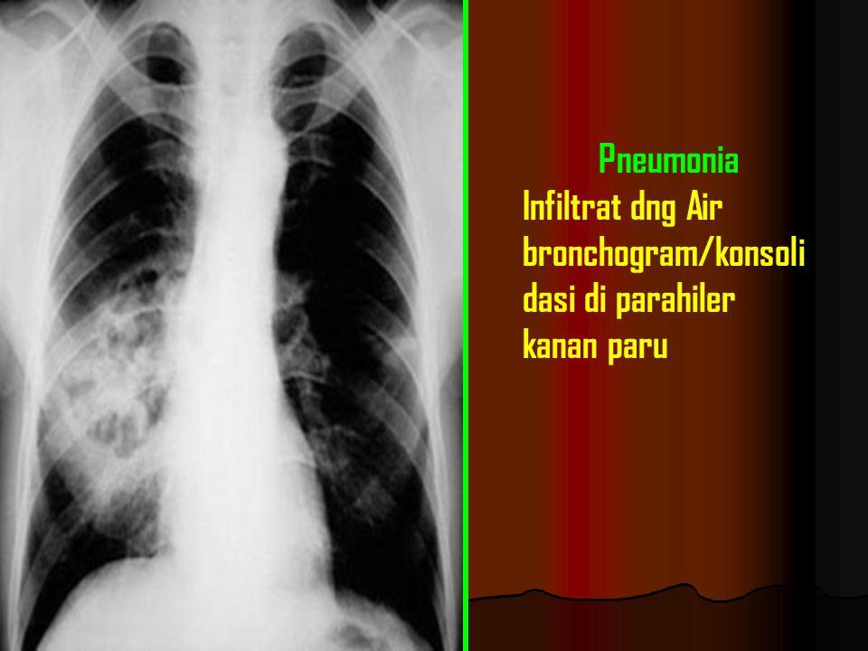 Pneumonia Infiltrat dng Air bronchogram/konsolidasi di parahiler kanan paru
