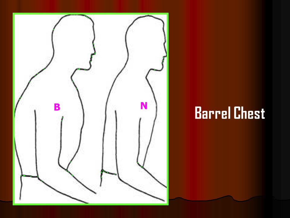 B N Barrel Chest