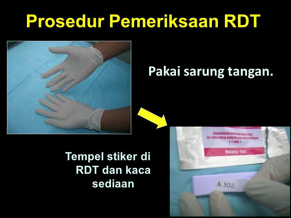 Prosedur Pemeriksaan RDT