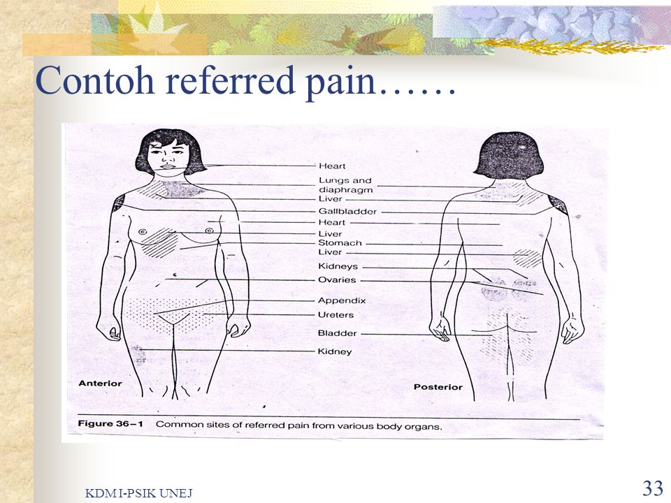 Contoh referred pain……