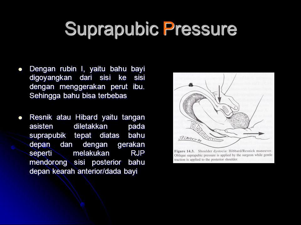 Suprapubic Pressure Dengan rubin I, yaitu bahu bayi digoyangkan dari sisi ke sisi dengan menggerakan perut ibu. Sehingga bahu bisa terbebas.