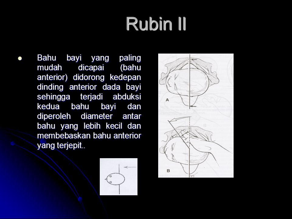 Rubin II
