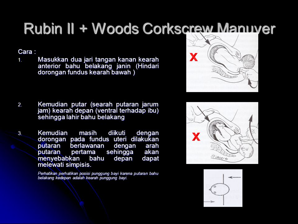 Rubin II + Woods Corkscrew Manuver