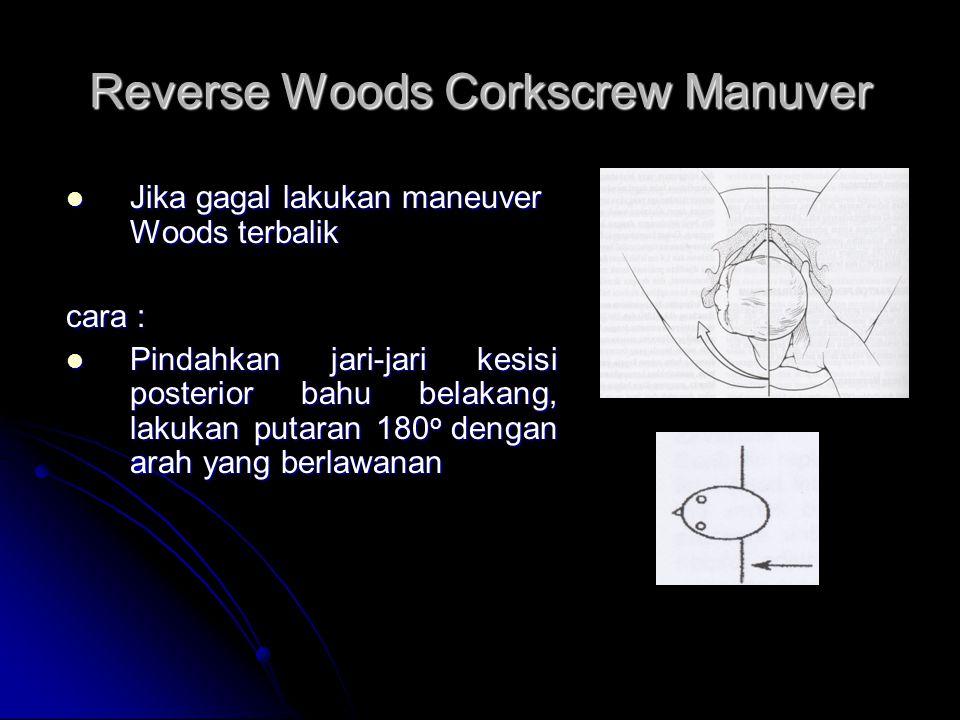 Reverse Woods Corkscrew Manuver