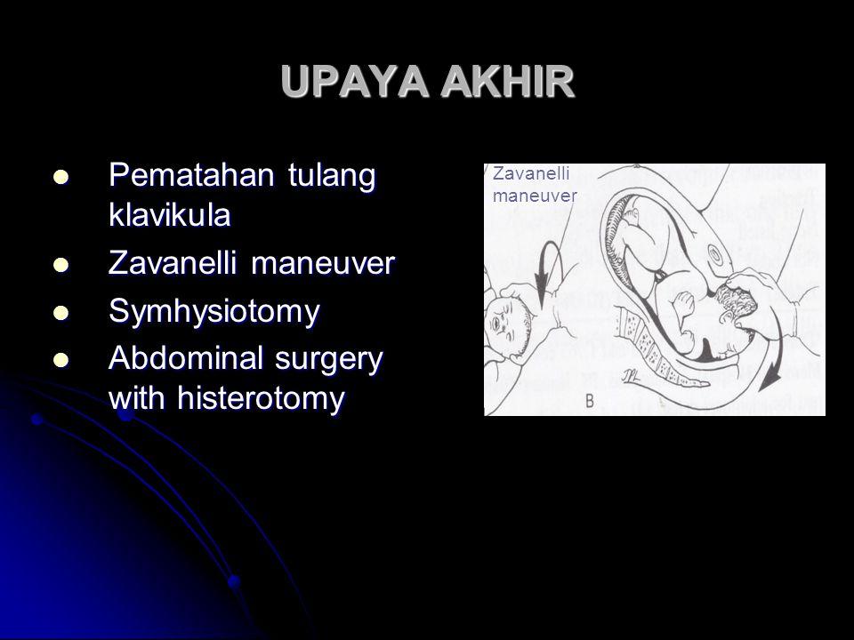 UPAYA AKHIR Pematahan tulang klavikula Zavanelli maneuver Symhysiotomy
