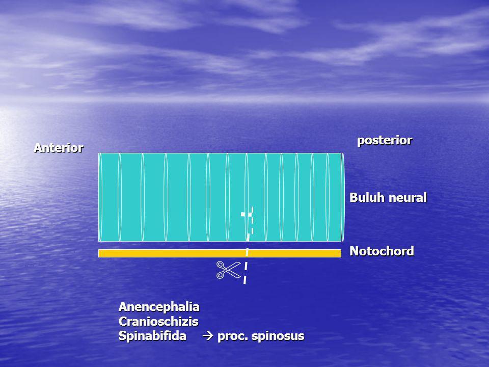  posterior Anterior Buluh neural Notochord Anencephalia Cranioschizis