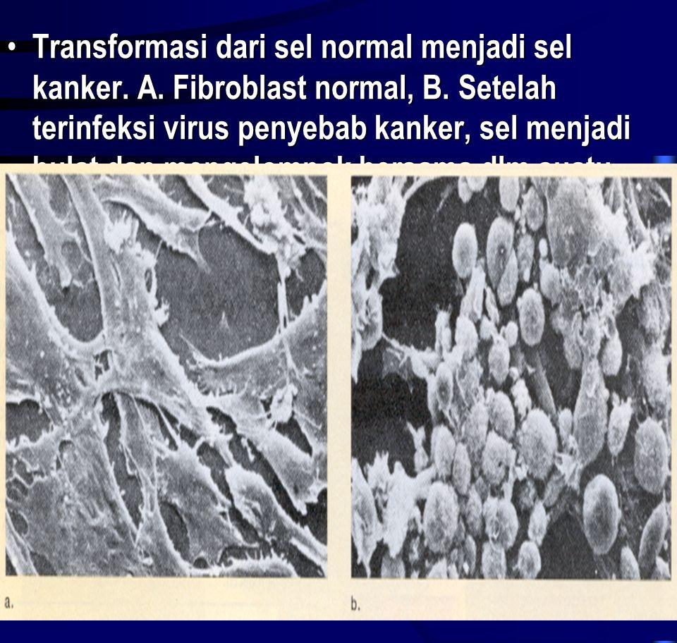 Transformasi dari sel normal menjadi sel kanker. A
