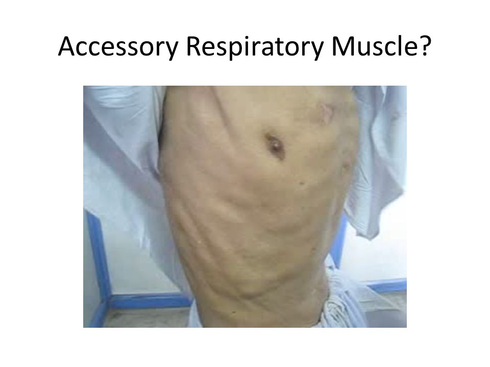 Accessory Respiratory Muscle