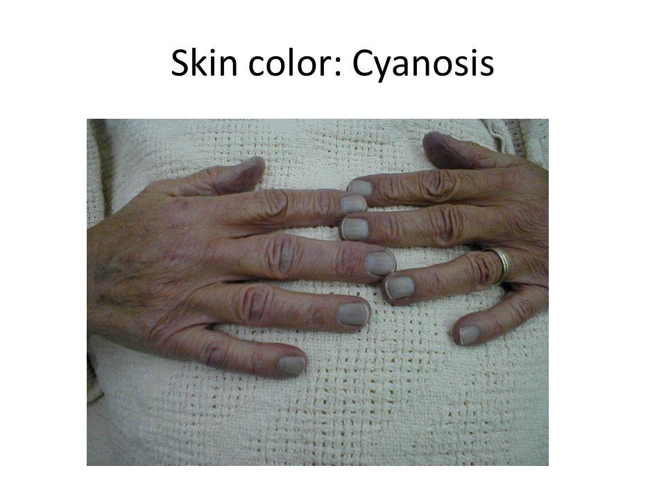 Skin color: Cyanosis