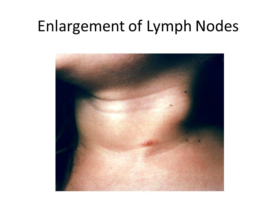Enlargement of Lymph Nodes