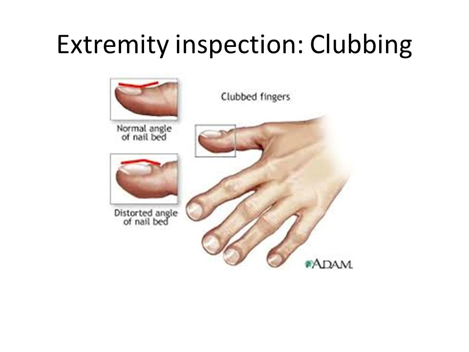 Extremity inspection: Clubbing