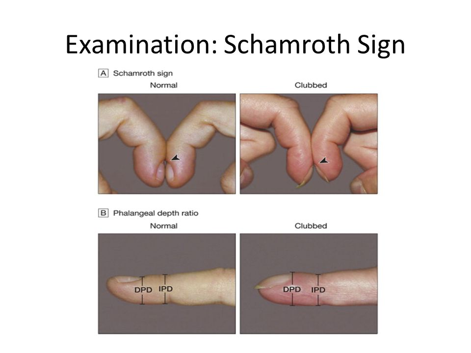 Examination: Schamroth Sign