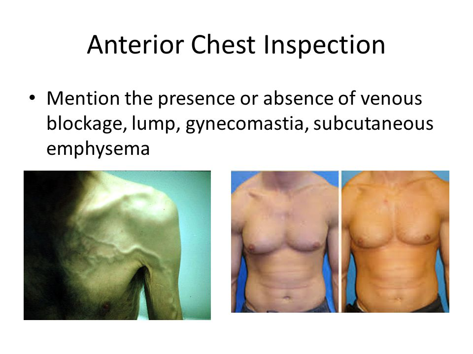 Anterior Chest Inspection