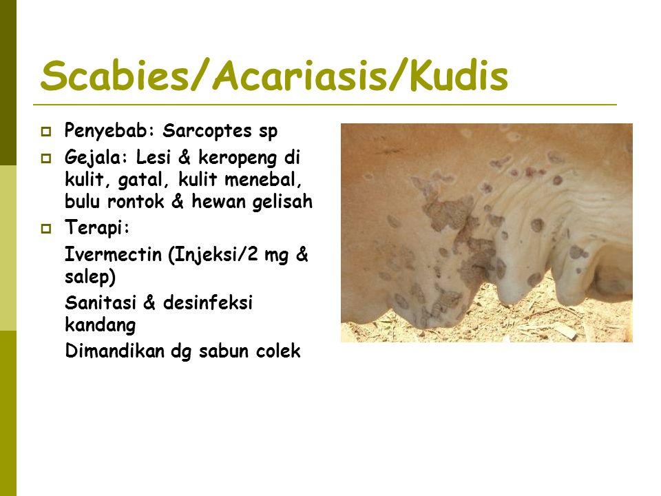 Scabies/Acariasis/Kudis