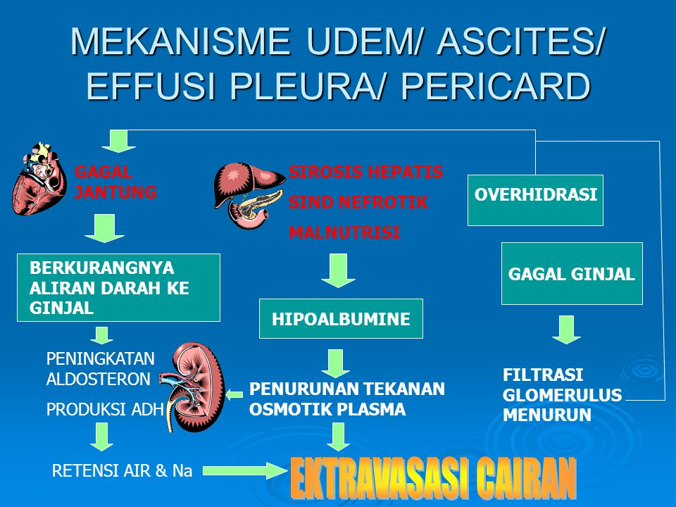 MEKANISME UDEM/ ASCITES/ EFFUSI PLEURA/ PERICARD