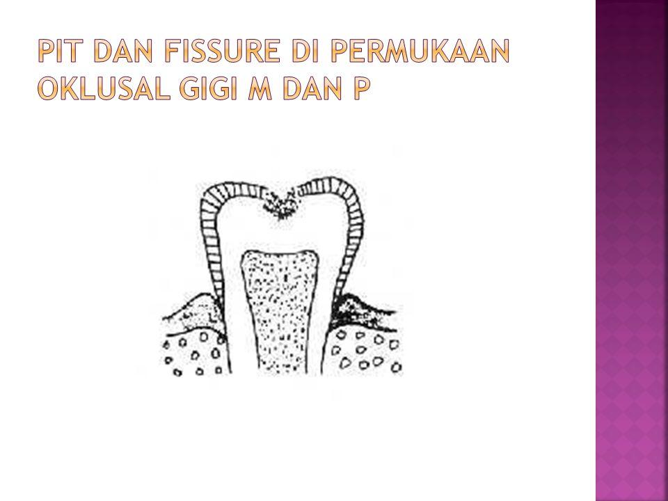 Pit dan fissure di permukaan oklusal gigi m dan p