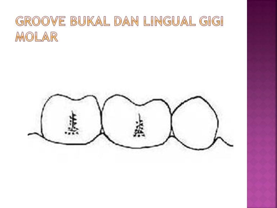 Groove bukal dan lingual gigi Molar