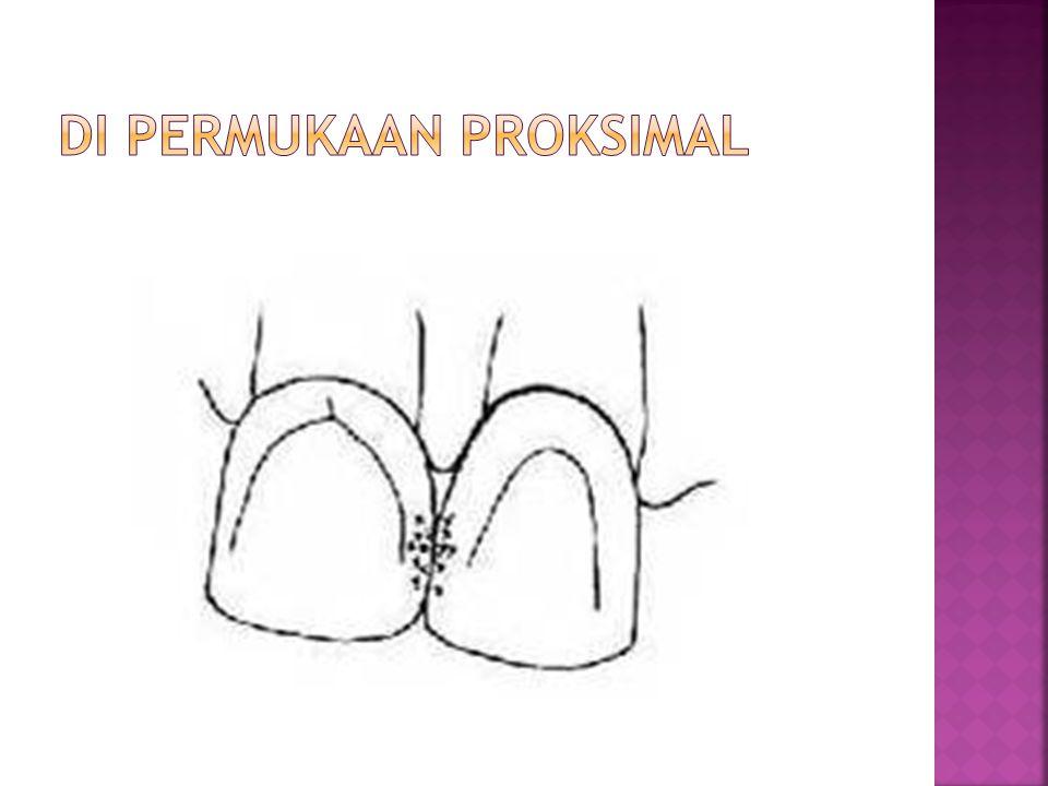 Di permukaan proksimal