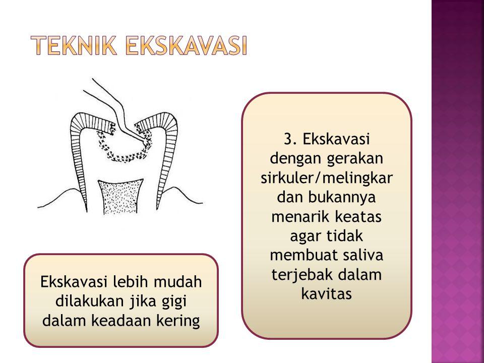 Ekskavasi lebih mudah dilakukan jika gigi dalam keadaan kering