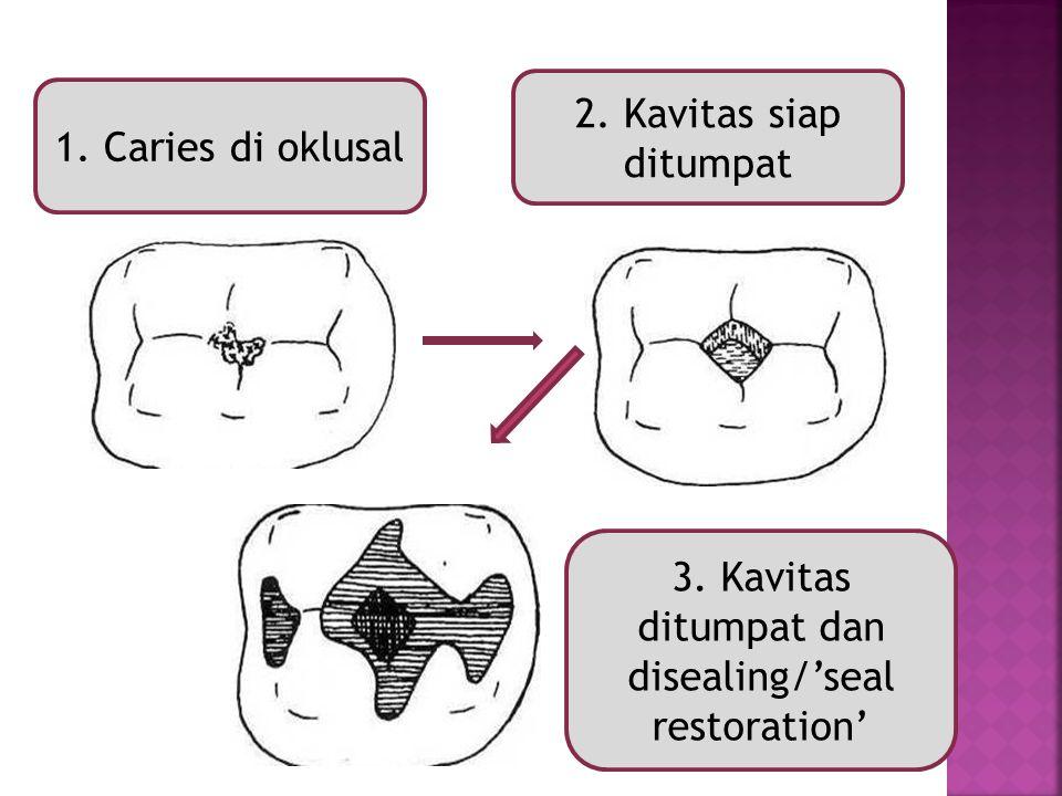 3. Kavitas ditumpat dan disealing/'seal restoration'