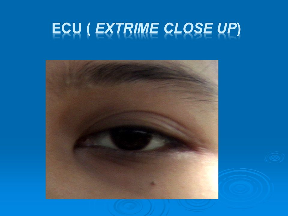 ECU ( Extrime Close Up)