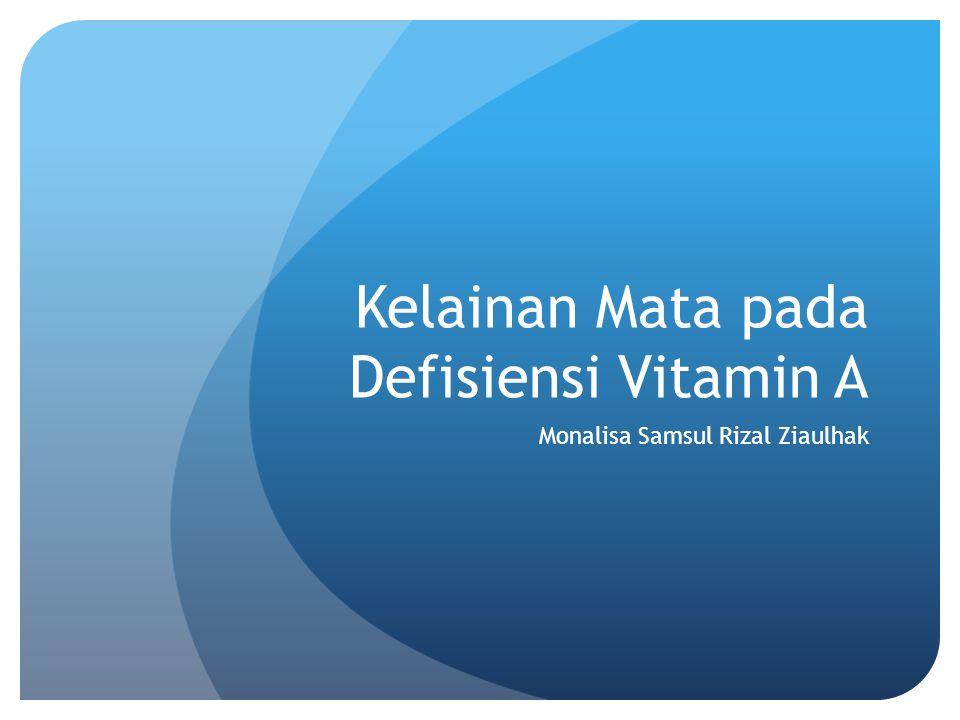 Kelainan Mata pada Defisiensi Vitamin A