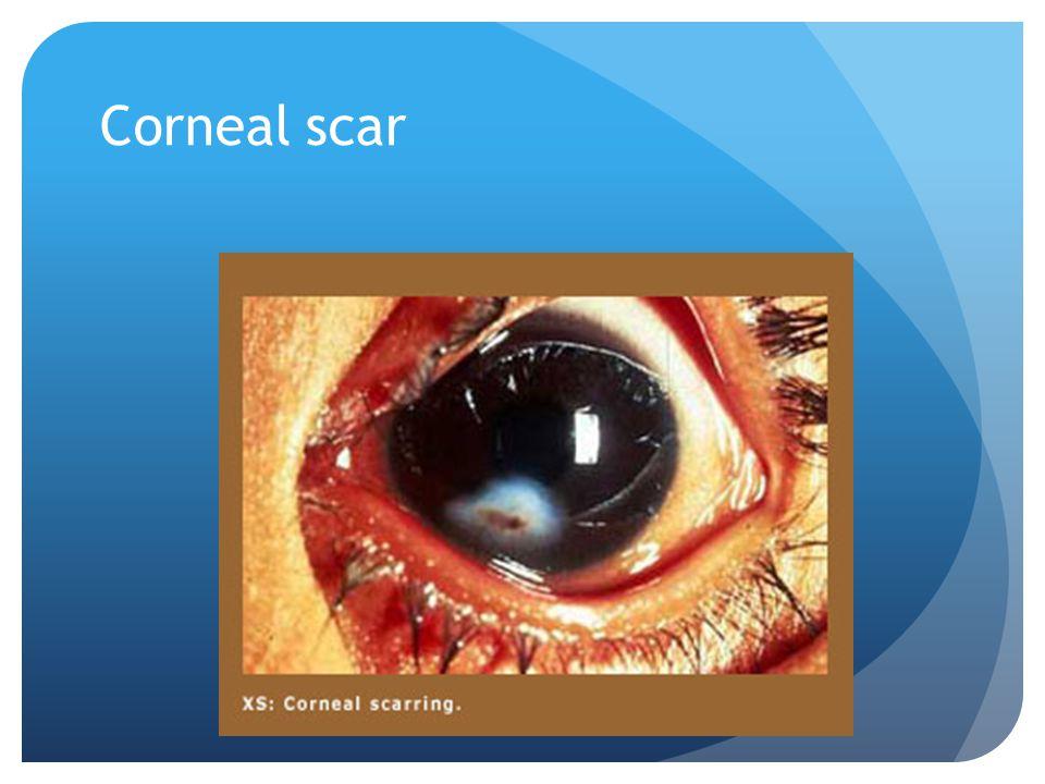 Corneal scar