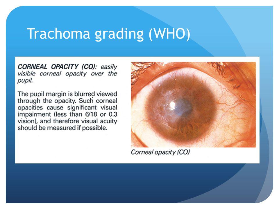 Trachoma grading (WHO)