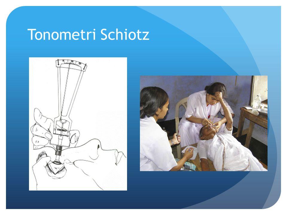 Tonometri Schiotz
