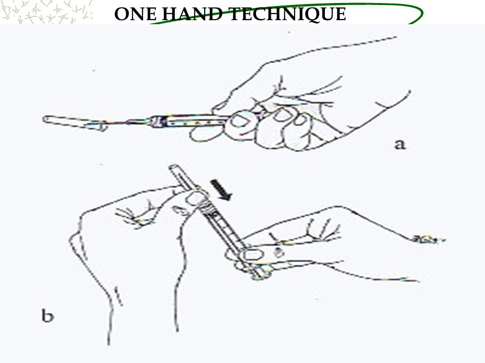 ONE HAND TECHNIQUE