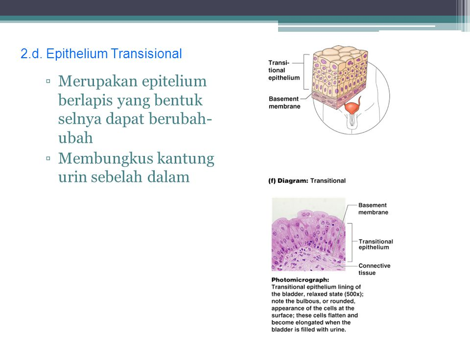 2.d. Epithelium Transisional