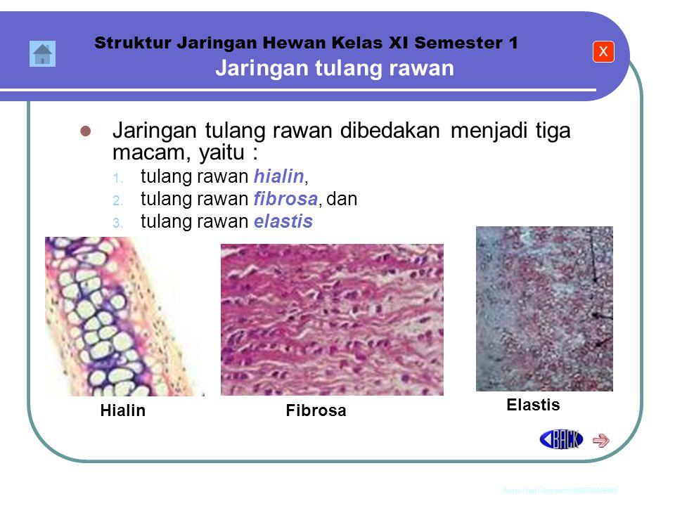 Jaringan tulang rawan dibedakan menjadi tiga macam, yaitu :