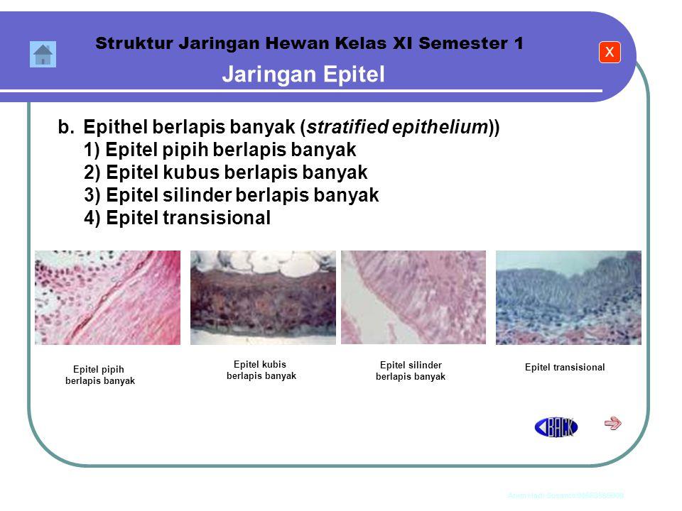 Jaringan Epitel b. Epithel berlapis banyak (stratified epithelium))