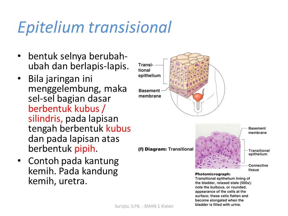 Epitelium transisional