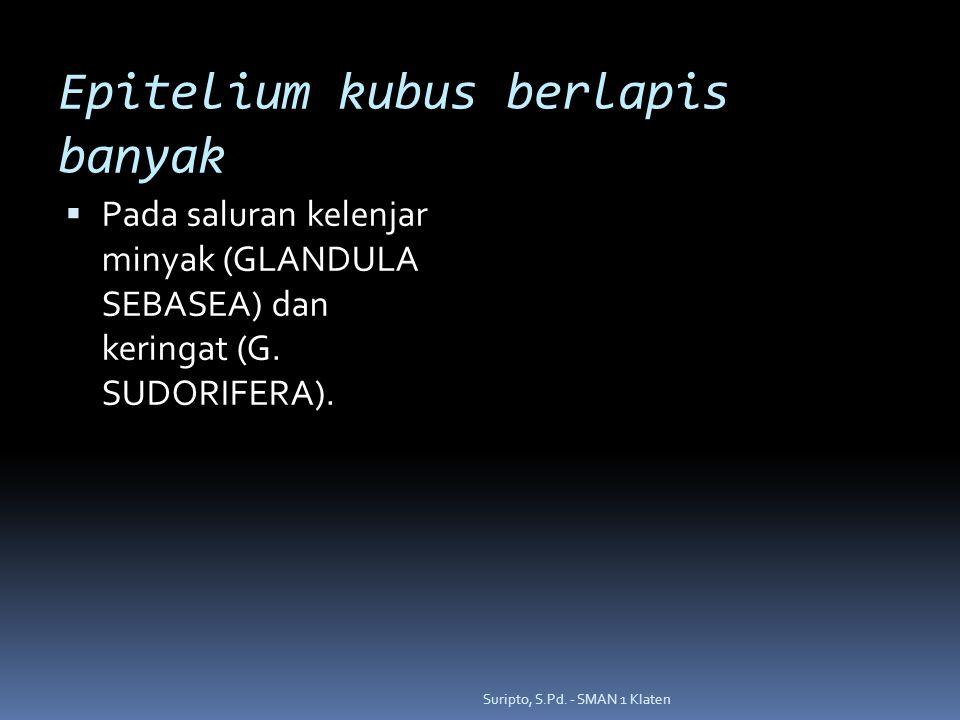 Epitelium kubus berlapis banyak