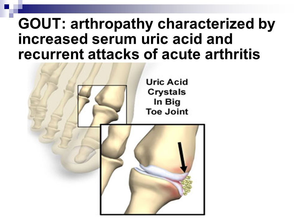 GOUT: arthropathy characterized by increased serum uric acid and recurrent attacks of acute arthritis