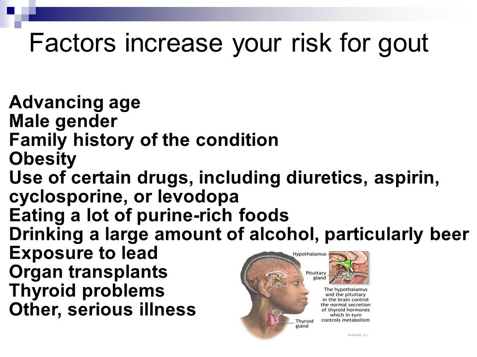 Factors increase your risk for gout